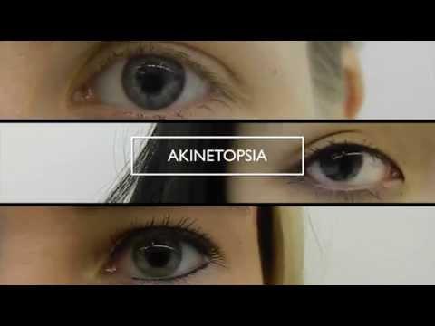 Akinetopsie