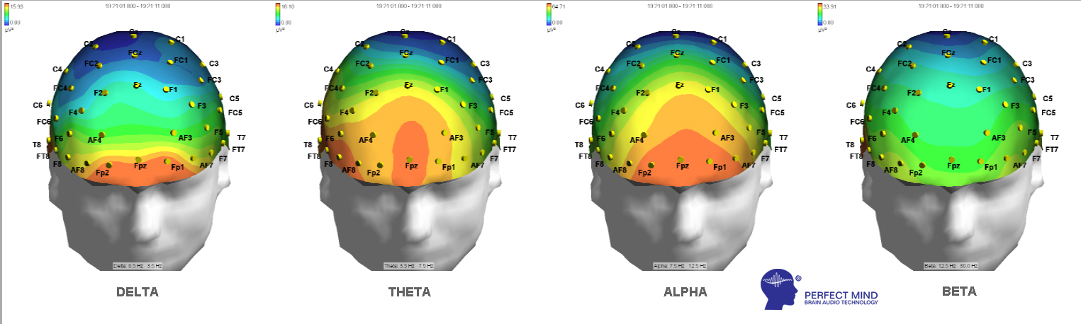 THETA si ALPHA cd perfect mind