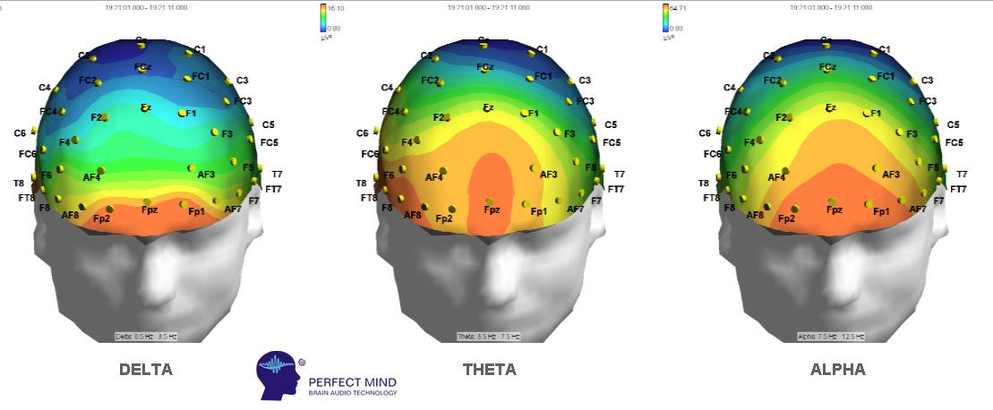 sincronie neuronala perfect mind