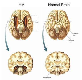 Operatia lui H.M.