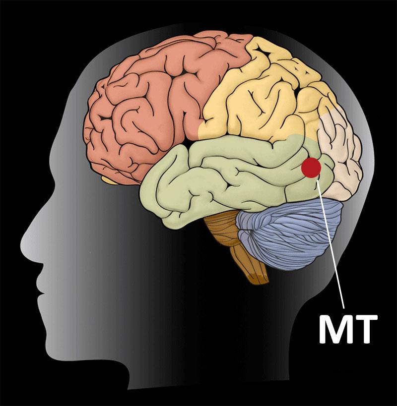 Zona MT din creier